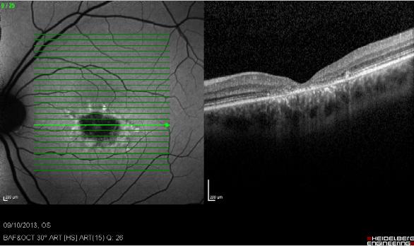 Fundus autofluorescence in age-related macular degeneration