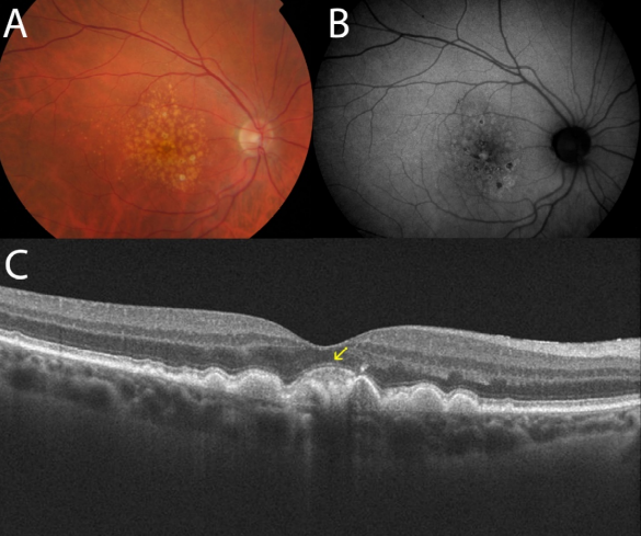 optical-coherence-tomography-age-related-macular-degeneration-image24.png
