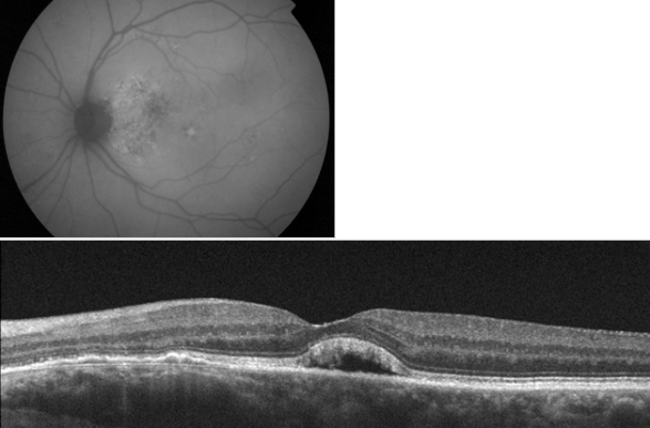 optical-coherence-tomography-age-related-macular-degeneration-image25.png