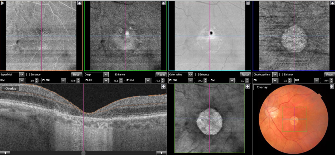 optical-coherence-tomography-age-related-macular-degeneration-image29.png