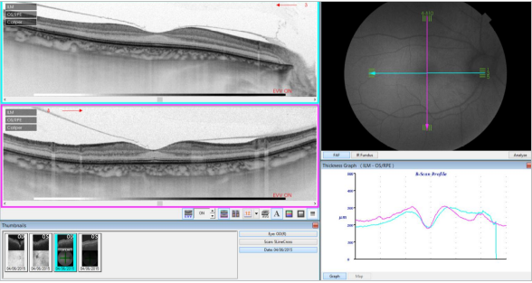 optical-coherence-tomography-age-related-macular-degeneration-image33.png