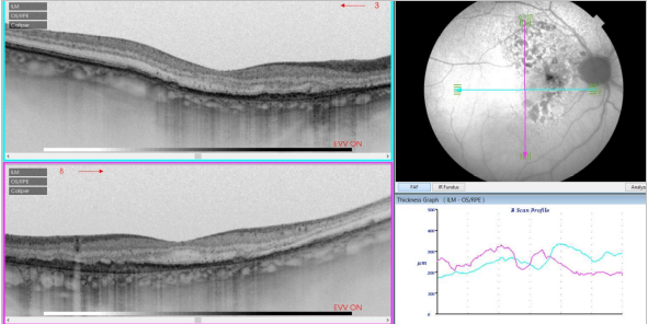 optical-coherence-tomography-age-related-macular-degeneration-image34.png