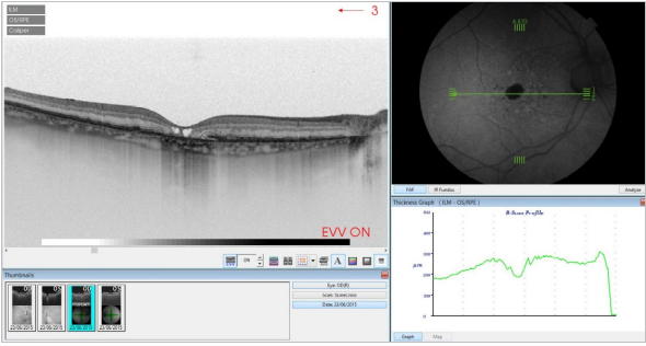 optical-coherence-tomography-age-related-macular-degeneration-image35.png