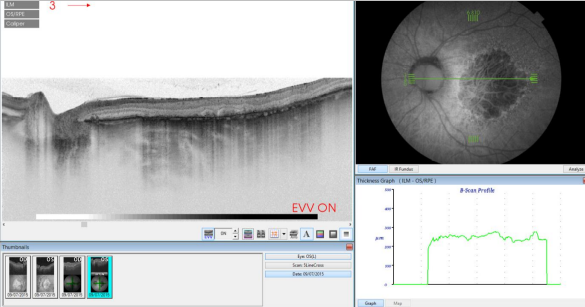 optical-coherence-tomography-age-related-macular-degeneration-image36.png