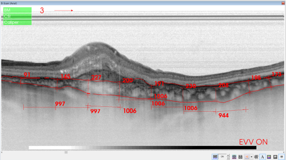 optical-coherence-tomography-age-related-macular-degeneration-image39.png