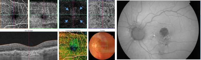 optical-coherence-tomography-age-related-macular-degeneration-image41.png