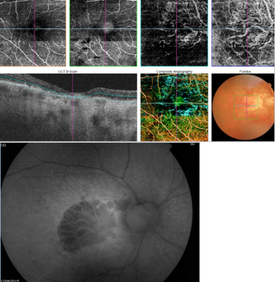 optical-coherence-tomography-age-related-macular-degeneration-image42.png