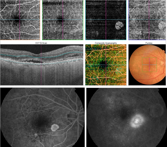 optical-coherence-tomography-age-related-macular-degeneration-image45.png