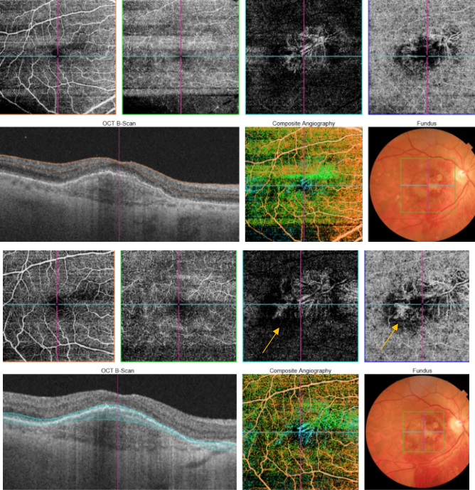 optical-coherence-tomography-age-related-macular-degeneration-image50.png