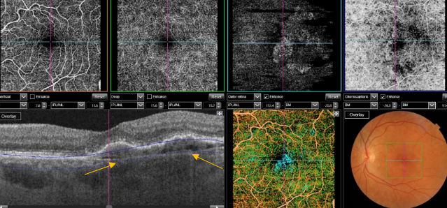 optical-coherence-tomography-age-related-macular-degeneration-image52.png
