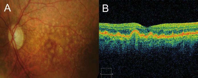 Optical Coherence Tomography In Age Related Macular Degeneration Www Amdbook Org